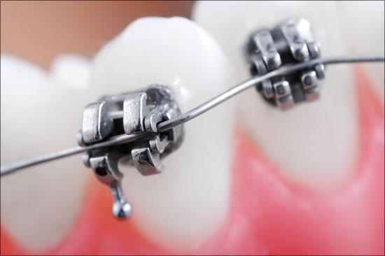 ฟันน้ำนมสำคัญไฉน