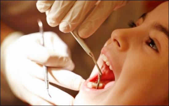 ฟันร้าว